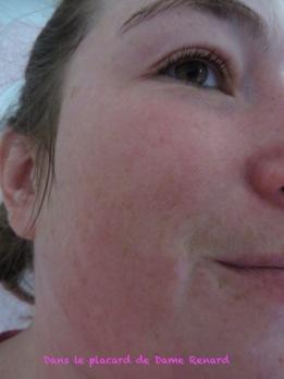 Peau après Masque bio-cellulose SOS ECLAT Barbara Gould