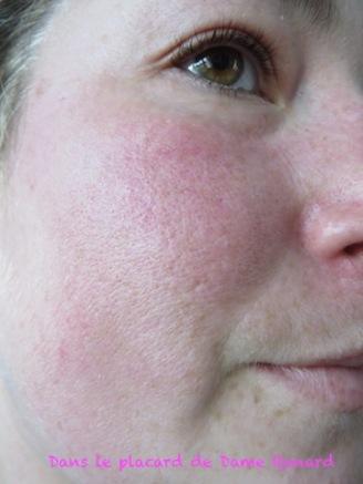 peau-avant-masque-tissu-hydra-bomb-garnier-skinactive-02
