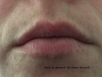 levres-sans-rouge-essentiel-rouge-flamboyant-dr-pierre-ricaud-01