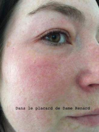 peau-apres-booster-regenerant-a-la-vitamine-c-dr-pierre-ricaud-01