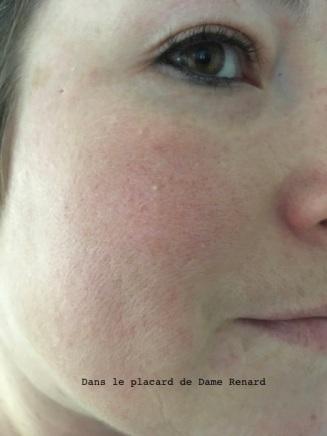 peau-avec-poudre mineral-redness-solution-clinique-01