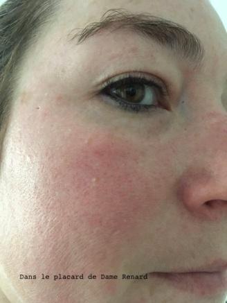 peau-sans-poudre mineral-redness-solution-clinique-01
